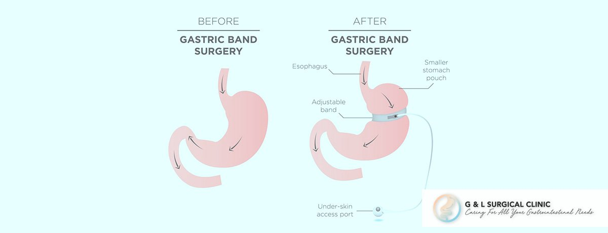 Laparoscopic Gastric Banding, Gastric Banding, Weight Loss Surgery, G&L Surgical Clinic, Dr Ganesh Ramalingam