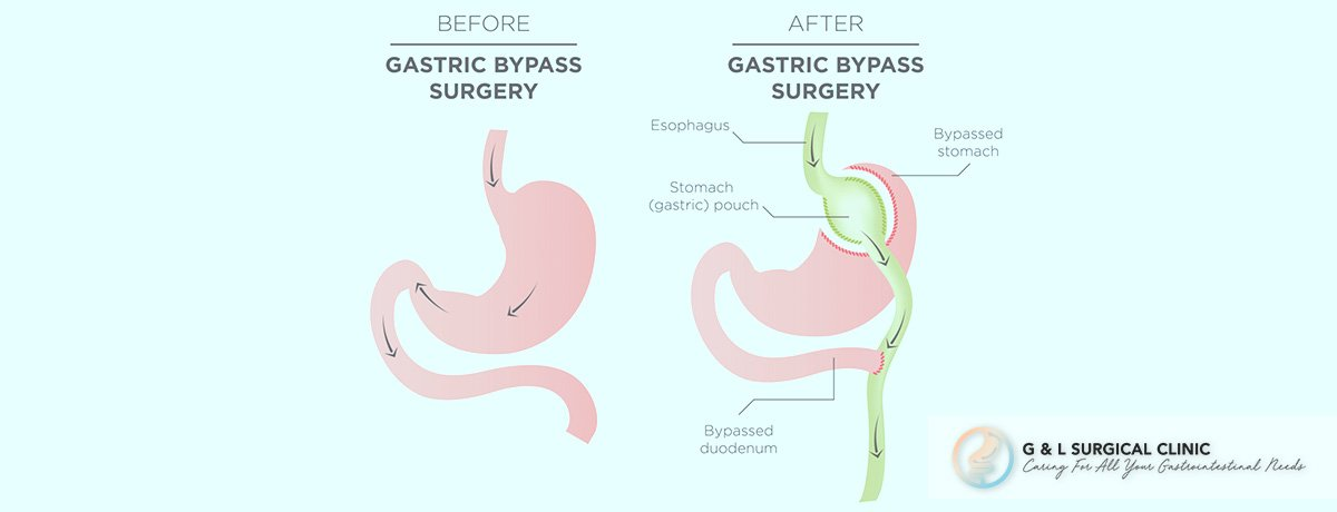 Laparoscopic Roux En Y Gastric Bypass, Gastric Bypass, Weight Loss Surgery, G&L Surgical Clinic, Dr Ganesh Ramalingam