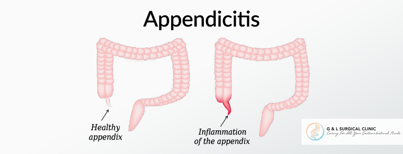 Appendicits, Inflammation of the Appendix, G&L Surgical Clinic, Dr Ganesh Ramalingam