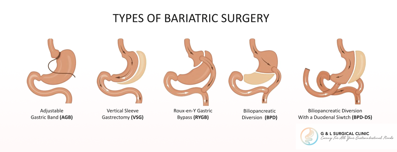 Bariatric Surgery Singapore, Bariatric Surgery, Weight Loss Procedures, G&L Surgical Clinic, Dr Ganesh Ramalingam