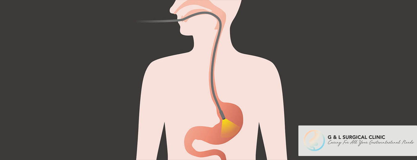Stomach Cancer, Cancers, Stomach Cancer Diagnosis, Gastroscopy, G&L Surgical Clinic, Dr Ganesh Ramalingam